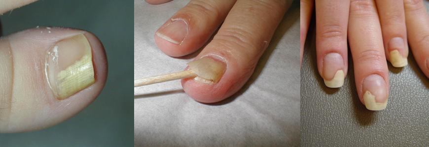 От нарощенных ногтей отходит ногтевая пластина