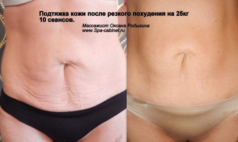 Процедуры чтобы подтянуть кожу после похудения