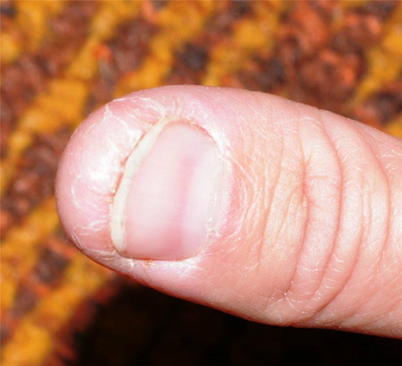 Сохнет кожа под ногтем на руке