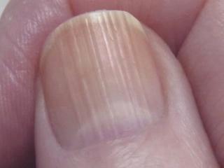 Почему волнистая ногтевая пластина