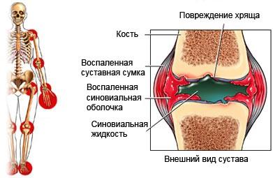 Что такое ревматоидный фактор как его лечить