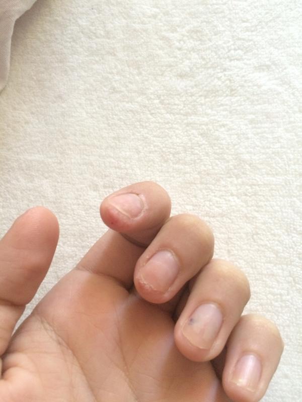 Нарост под ногтем на руке