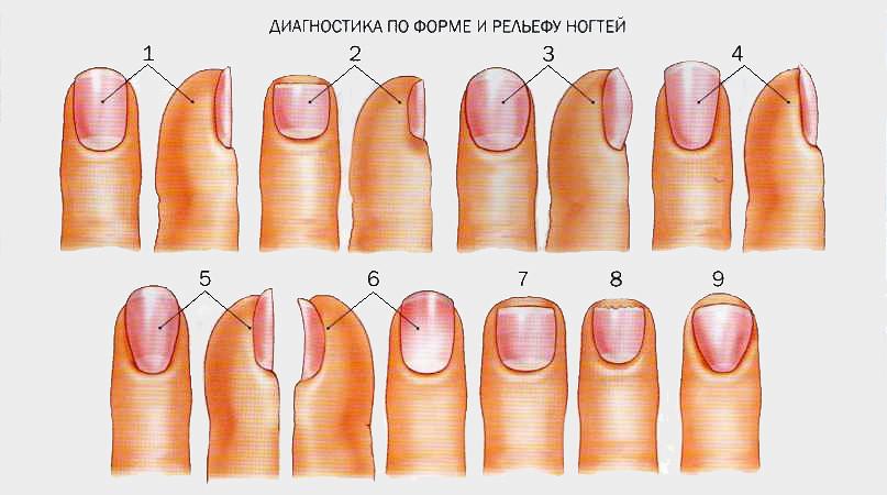 Какие бывают заболеванием ногтей с