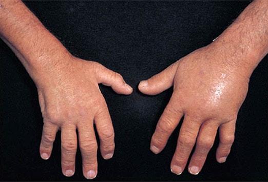 Опухла рука как лечить в домашних условиях 559