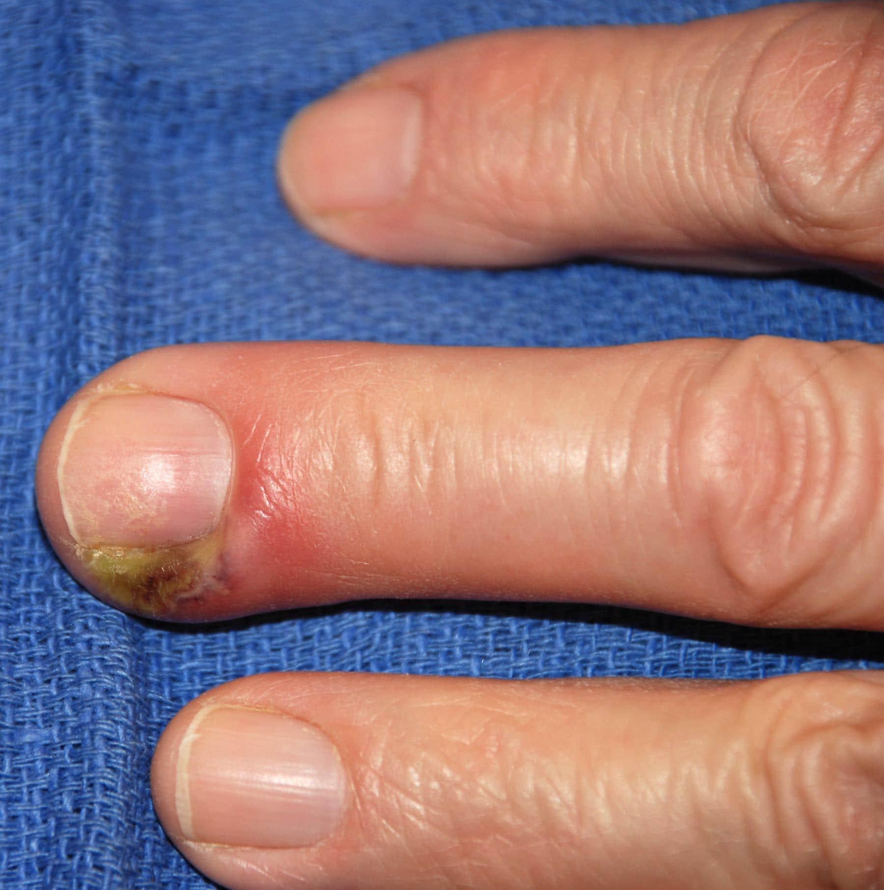 Гной на пальце как лечить в домашних условиях