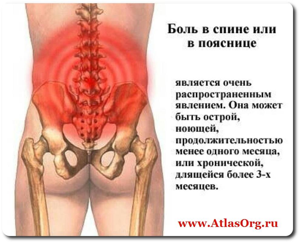 Тянущие боли в спине почки