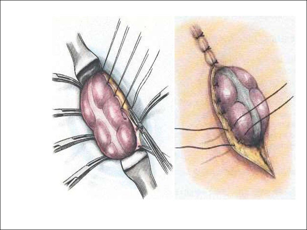 Шунтирование желудка (гастрошунтирование)