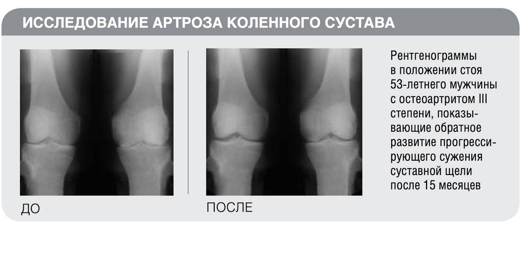 Протокол лечения артрозов