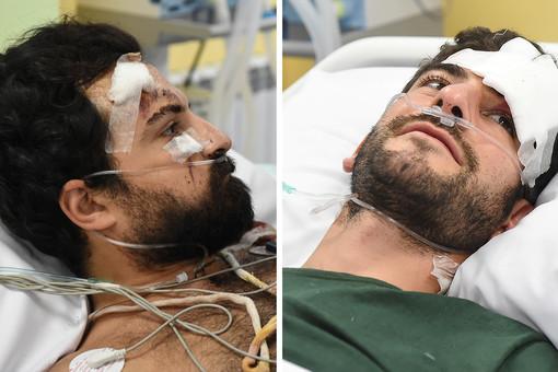 Раненых вКарабахе французских журналистов эвакуировали спецбортом