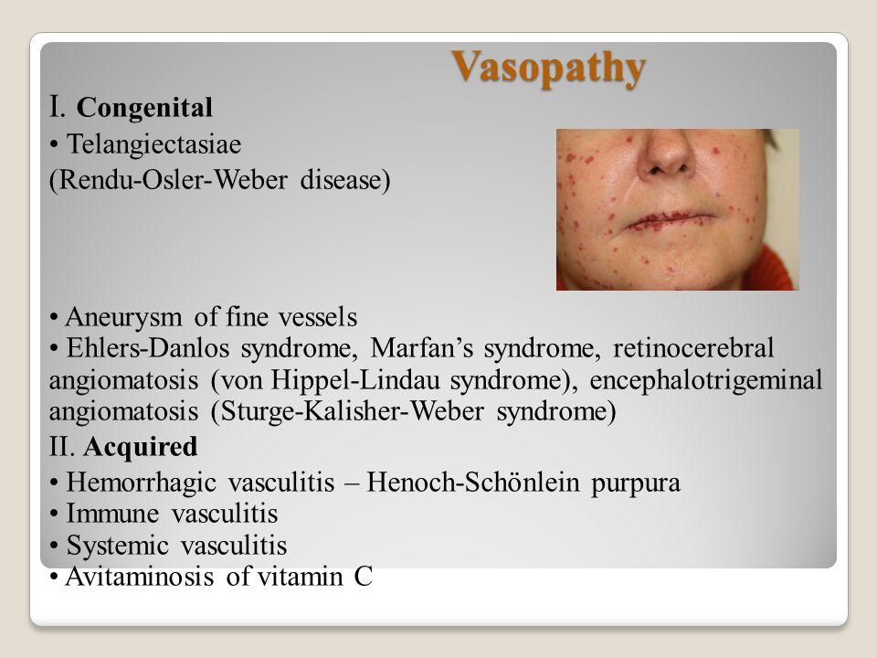 V Thrombocytic Hemorrhagic Diatheses - Springer