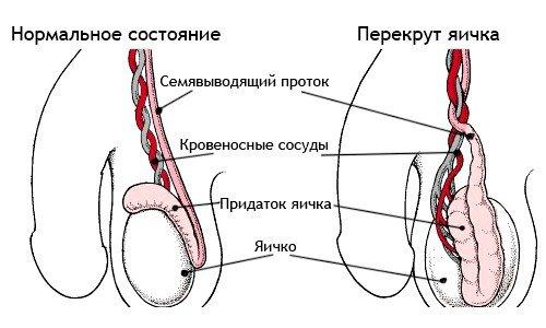 Урология - болезни и лекарства