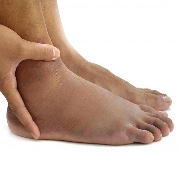 Как лечить боли в ногах при алкоголизме