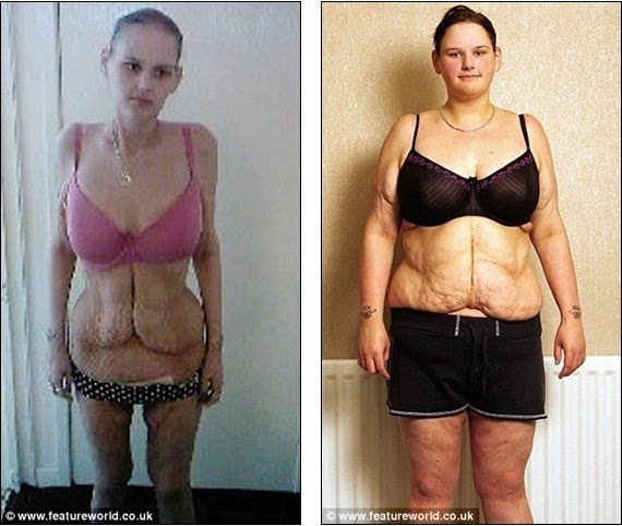 Vyvanse in adults weight loss