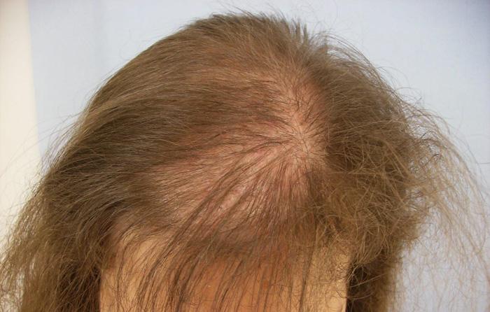 Выпадение волос после родов - причины и лечение