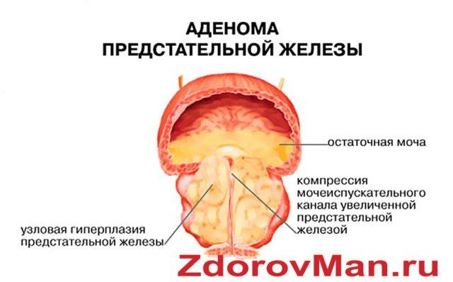 Аденома предстательной железы удаление хирургическим лазером в самаре