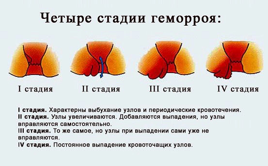 Геморрой от мустурбации