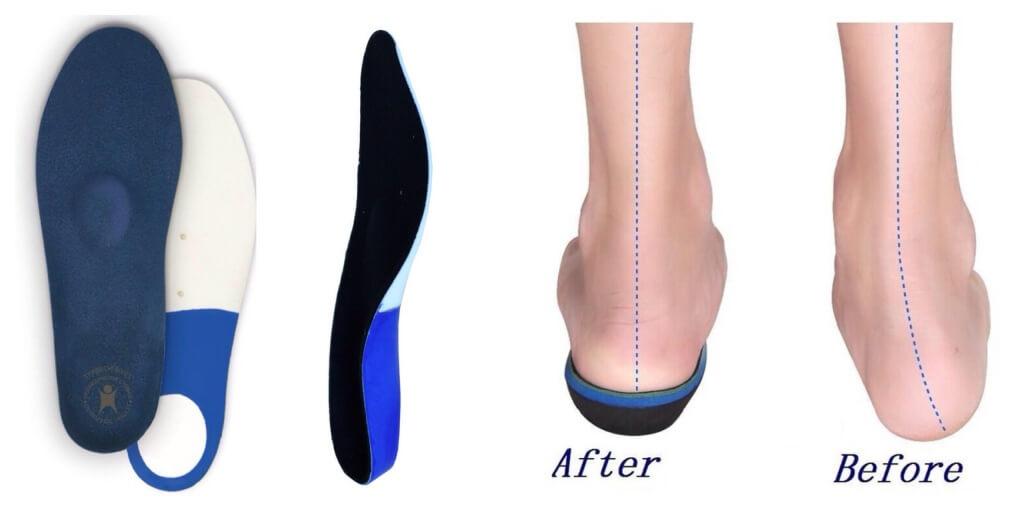 Детские ортопедические стельки при вальгусной деформации купить в москве