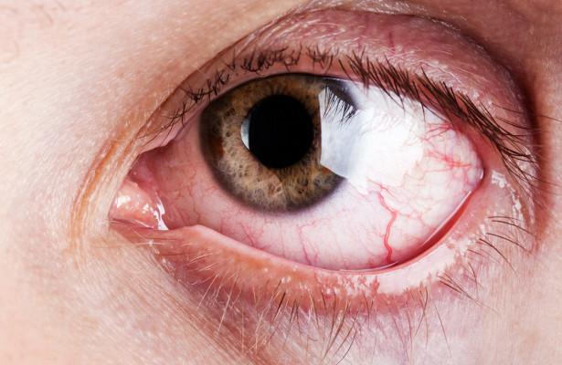 Окаких болезнях говорят лопнувшие капилляры